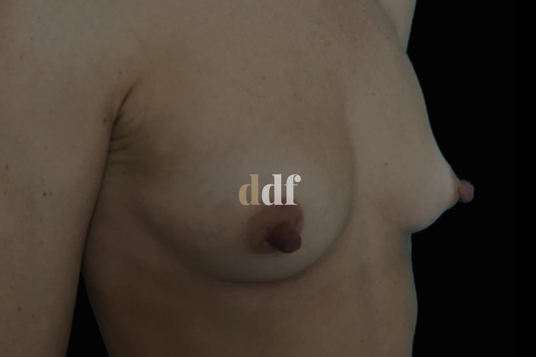 Lipofilling seno pre - Dott. D. De Fazio