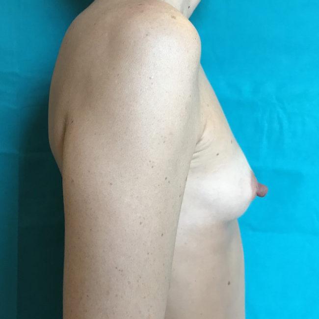 Lipofilling seno PRE | Dott. D. De Fazio