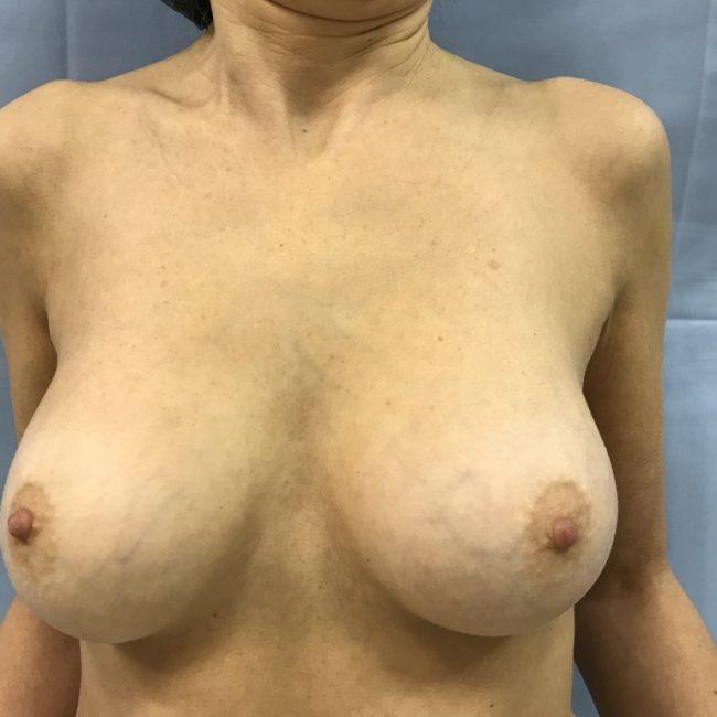 Rimozione protesi e lipofilling seno PRE | Dott. D. De Fazio