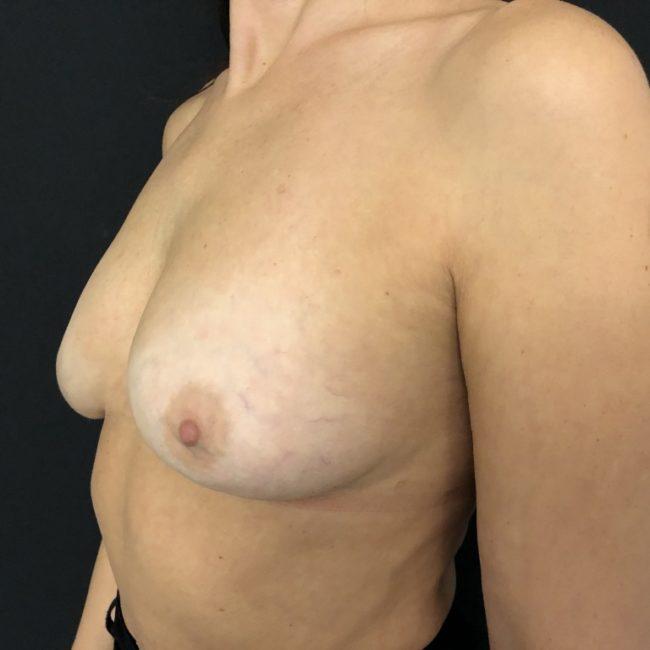 Rimozione protesi e lipofilling seno POST | Dott. D. De Fazio