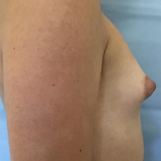 Lipofilling seno tuberoso PRE | Dott. D. De Fazio