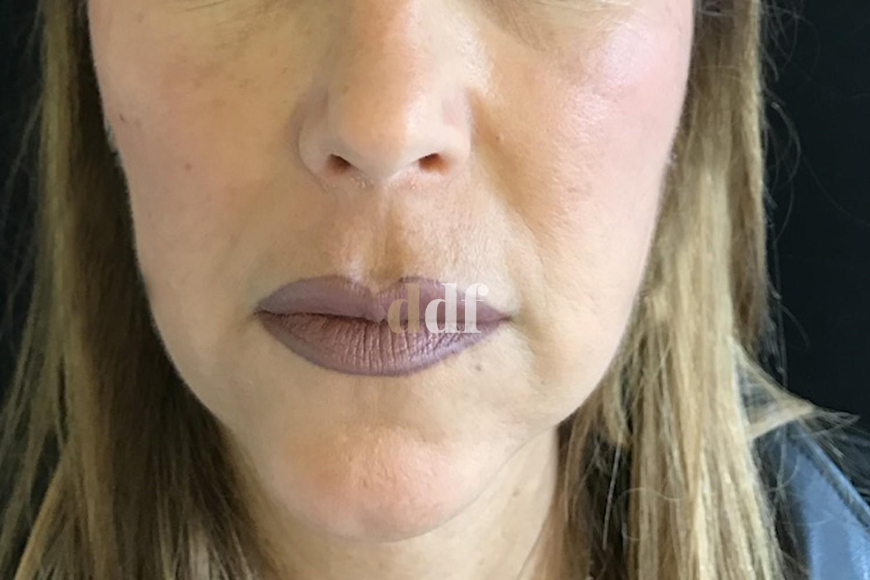 Lipofilling viso post - Dott. D. De Fazio