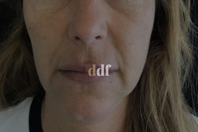 Lipofilling viso pre - Dott. D. De Fazio