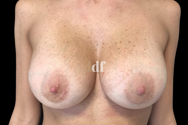 Mastoplastica additiva seno post - Dott. D. De Fazio