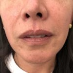 Blefaroplastica e lipofilling POST | Dott. D. De Fazio