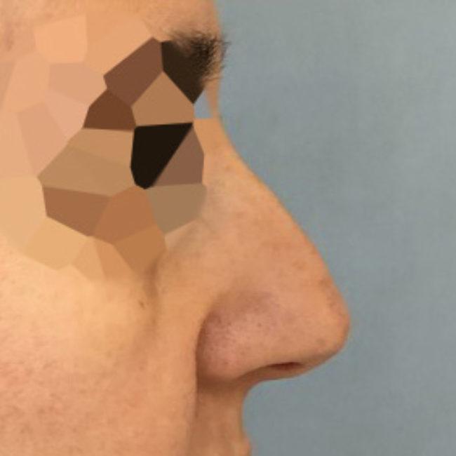Rinoplastica PRE   Dott. D. De Fazio