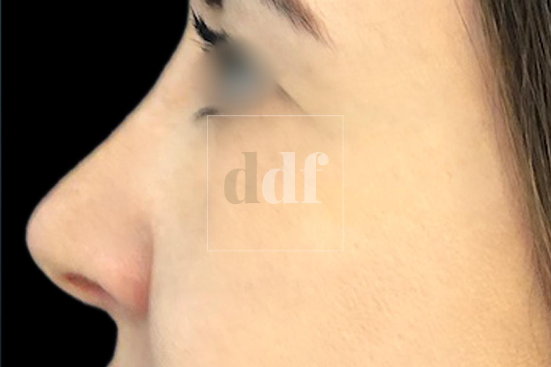 Rinoplastica POST | Dott. D. De Fazio