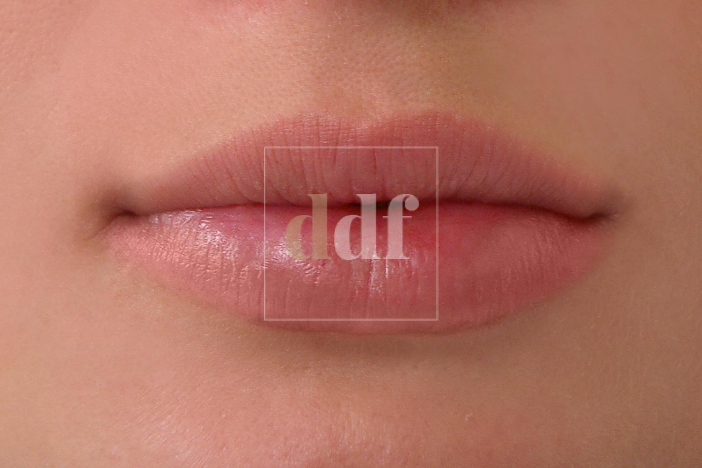 Filler labbra POST | Dott. D. De Fazio
