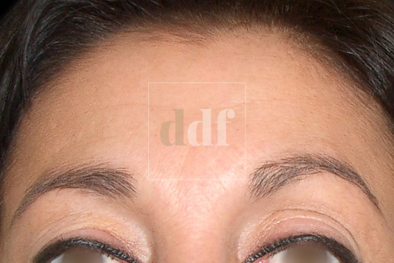 Botox | Dott. D. De Fazio