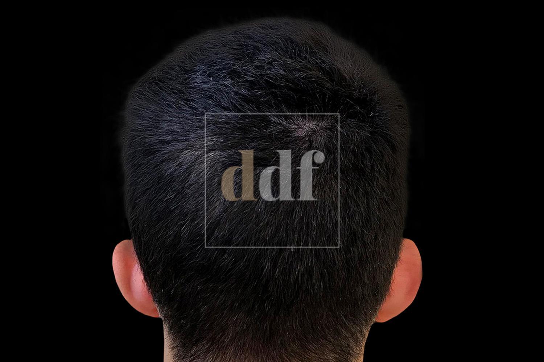 Otoplastica PRE - Dott. D. De Fazio